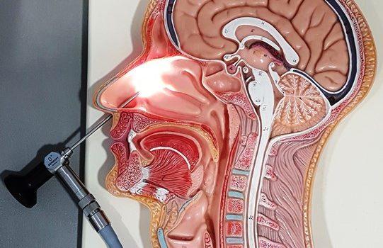 En que consiste la operacion de sinusitis